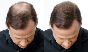 caida del cabello 5